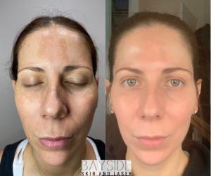 Bayside Skin & Laser Cosmelan