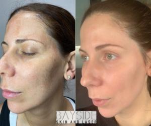 Cosmelan Treatment Bayside skin and Laser
